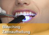 Bleaching und Zahnaufhellung, auch im Urlaub. Beim In-Office/Powerbleaching werden die Zähne in mehreren Durchgängen in einer Sitzung aufgehellt. Zur Aufhellung kompletter Zahnreihen ist das Homebleaching mit Schienen quasi der Goldstandard. Der Vorteil hier: es ist günstiger und möchte der Patient später einmal nachhellen,  kann er die angefertigen Schienen wieder verwenden und muß nur das Bleichgel nachkaufen.