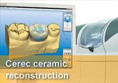 Cerec AC / 3D  - Vollkeramik in einer Stunde mit modernster CAD/CAM -Technologie - der neue Goldstandard.