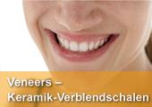 Veneers - Keramikverblendschalen - für traumhaft schöne Zähne und einen neuen Look.