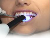 Bleaching von Ihrem Zahnarzt in Passau, Bad Griesbach