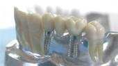 Implantate - eine Sichere Basis für festsitzenden Zahnersatz